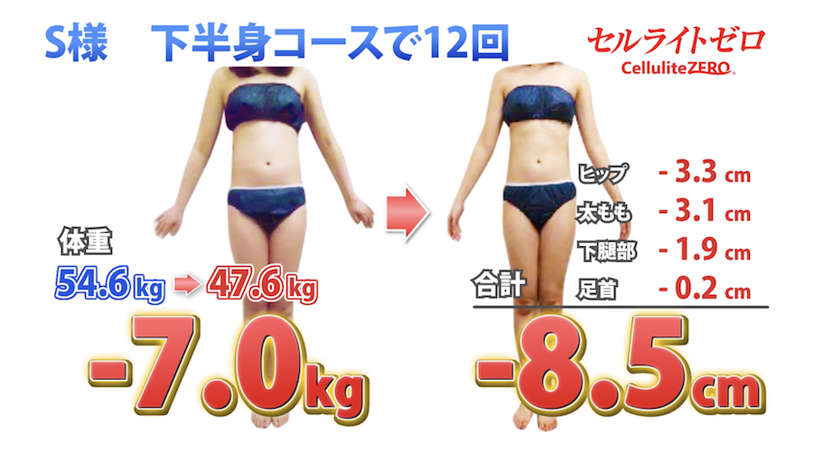 e-body-design
